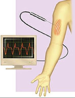 Electromiografía (EMG)