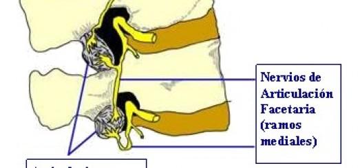Nervioso articulaciones facetarias dolor
