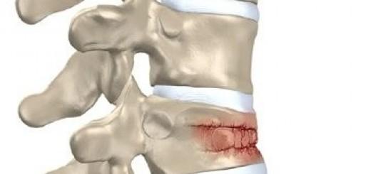 fractura aplastamiento vertebral