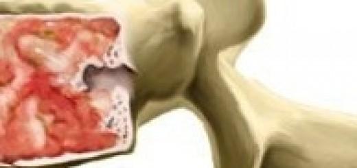 Tumor cancer columna vertebral